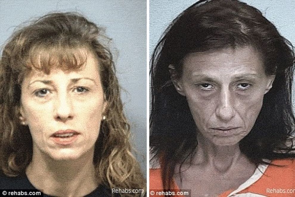 Prima e dopo gli effetti devastanti della droga immagini - Sali da bagno droga effetti ...