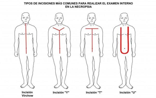 Incisiones más comunes para realizar el Examen Interno en la Necropsia
